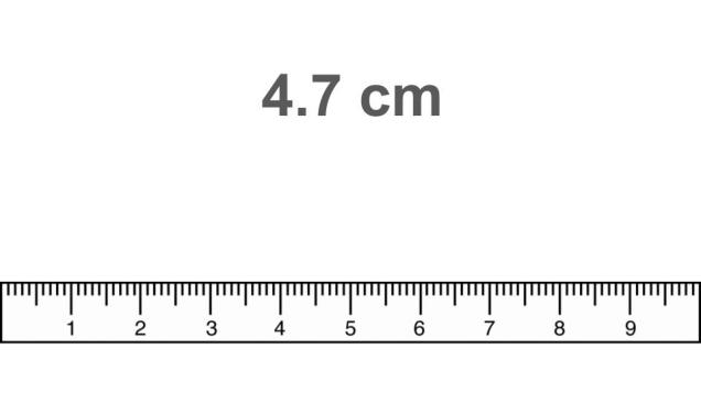 Metric Ruler Guided Practice For Cm Mm Middle School Science Blog